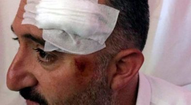Kurdish politicians handcuffed and beaten by police in Turkey's east 24